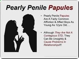 However, even Penile How Papules Is Caused Pearly Roger