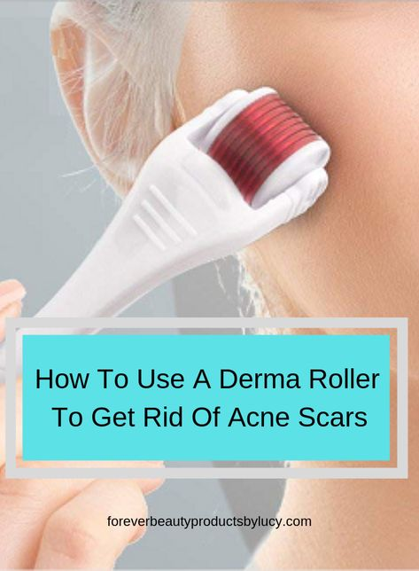 How to use a derma roller for acne scars | Acne Scar Treatment Products | Here I will show you step by step on how to use a derma roller for acne scars, what you will need to get started and what needs to be done after you have derma rolled your skin. See derma roller before and after pictures of just how great this tool works. Forever Beauty Products by Lucy #acnescars #skincare