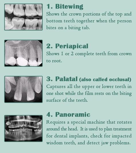 """The 🔑 to dentistry 🦷 on Instagram: """"🇺🇸 X-ray types. 🇫🇷 Types de rayons X. #dentistry #dentist #dental #smile #odontologia #dentista #followforfollow #cosmeticdentistry…"""""""