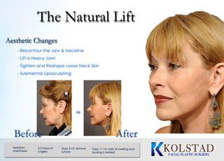 Facelift San Diego With Images Facial Plastic Surgery Facial Plastic Face Lift Surgery