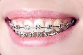 Set Your Teeth Straight Consult A Professional To Implement Braces Dental Braces Affordable Braces Orthodontics