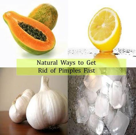 Natural ways to get rid of pimples, mango, lemon, garlic
