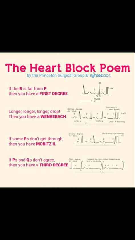 Quick EKG interpretation...