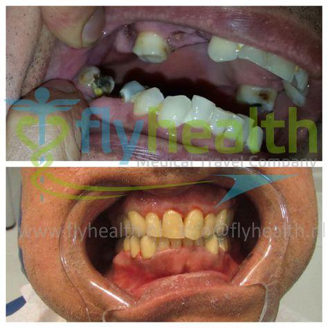 Uk Patient Received 17 Porcelain Dental Crowns Turkey In 3 Days Dentists Turkey Dentalcrown Dentalcare Dentalt Dental Crowns Dental Dental Implants Cost