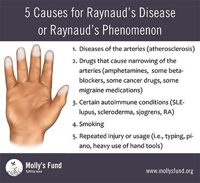 What Causes Raynaud's Syndrome | Raynaud's Disease or Raynaud's Phenomenon: Symptoms, causes ...