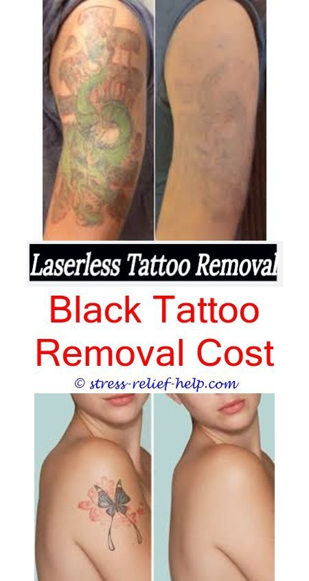 How Long Does Laser Tattoo Removal Take How Much To Remove A Small Tattoo Can You Remove A Tattoo Right Tattoo Removal Cost Laser Tattoo Eyebrow Tattoo Removal