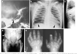 Mucolipidosis Dysostosis Multiplex Google Da Ara Tibbi