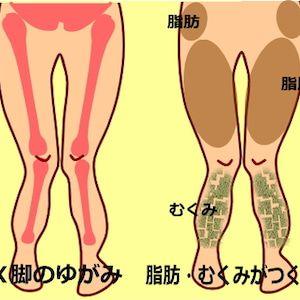 脚 原因 x