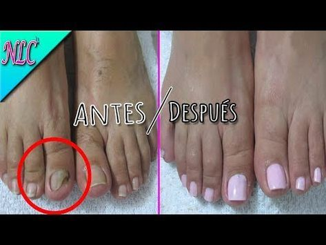 Como Arreglar Uña Con Hongo Paso A Paso How To Pedicure Nlc Youtube Acrylic Nails At Home Fake Toenails Toe Nails