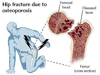 16+ How do you get tested for osteoporosis information
