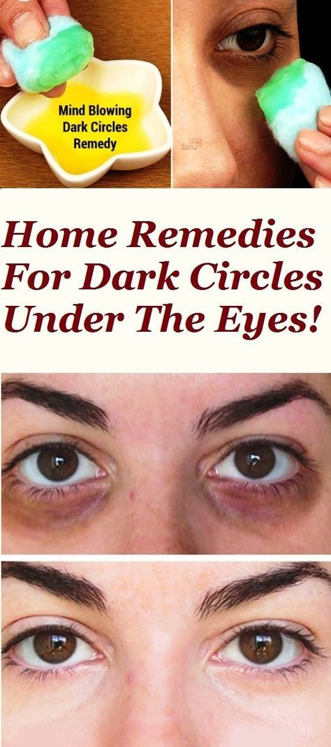 HOME REMEDIES FOR DARK CIRCLES UNDER THE EYES! | Dark