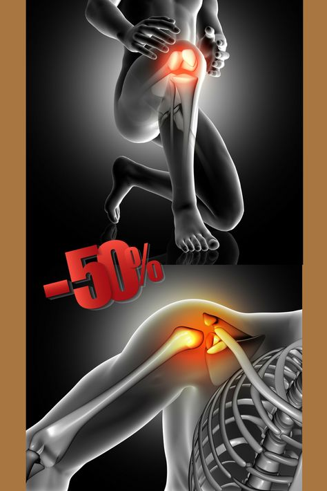 pr térdízület fájdalma
