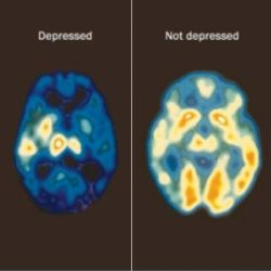 Top Five Foods For Beating Depression - How To Beat Depression With The Right Diet   Search Home Remedy