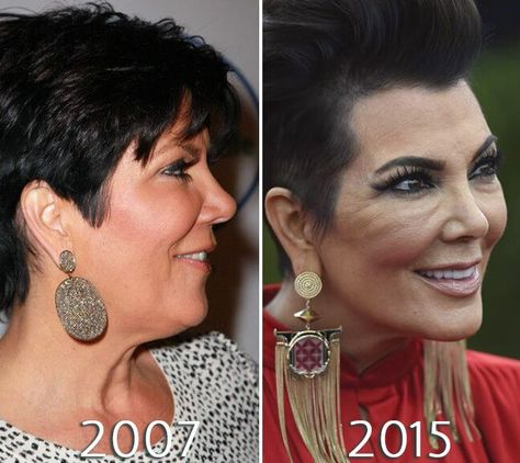 Kris Jenner facelift before and after photo