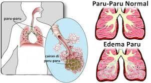 17+ Tentang penyakit paru paru ideas
