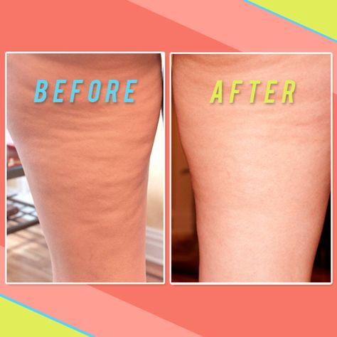 test anti cellulite