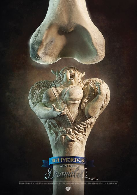 Print Advertising : GSK Print Ad - The Drama in RA – Viking Print Advertising Campaign Inspiration GSK Print Ad – The Drama in RA – Viking Advertisement Description GSK Print Ad – The Drama in RA – Viking Don't forget to share the post, Sharing is love !