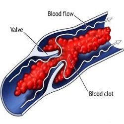 bloodclots BLOOD CLOTS // Natural Cures...