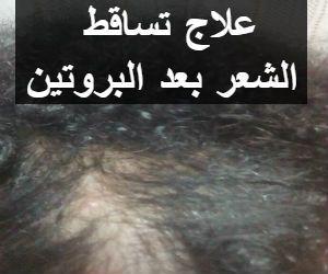 بينى فتس موقع فوائد الغذاء للصحة علاج تساقط الشعر بعد البروتين بعد تجربتى له Lockscreen