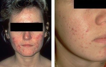What Is Acne Laser Skin Treatment Laser Treatment Severe Acne Remedies