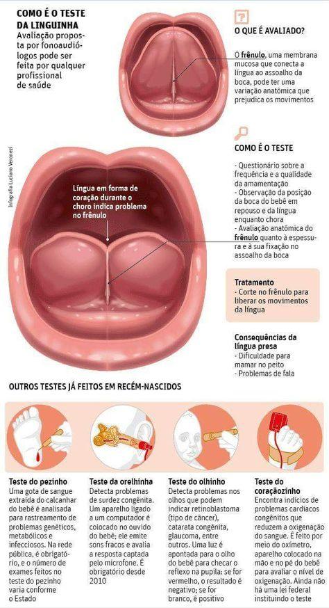 Pin By Rute Fonseca On Lenguaje Speech Therapy Speech Language Therapy Myofunctional Therapy