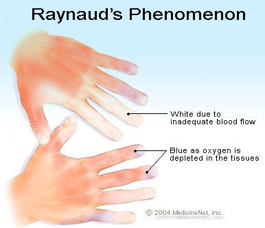 Raynaud's Phenomenon explained by Jenny Crozier on Today's Mama with help from the Mayo Clinic. #MCTD #raynauds