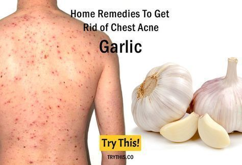 cf3d8bc3e9ceeff10a73c6c2950eacfc - How To Get Rid Of Chest Acne And Scars
