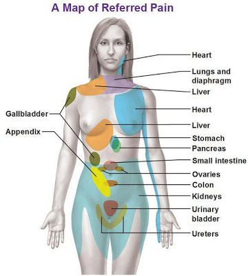 Map of Referred Pain in Woman Body