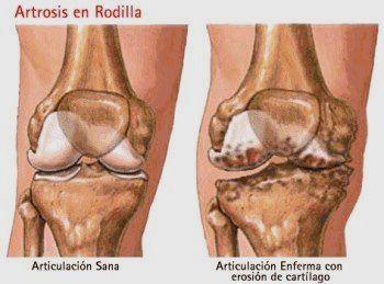 térdízület osteoarthrosis)