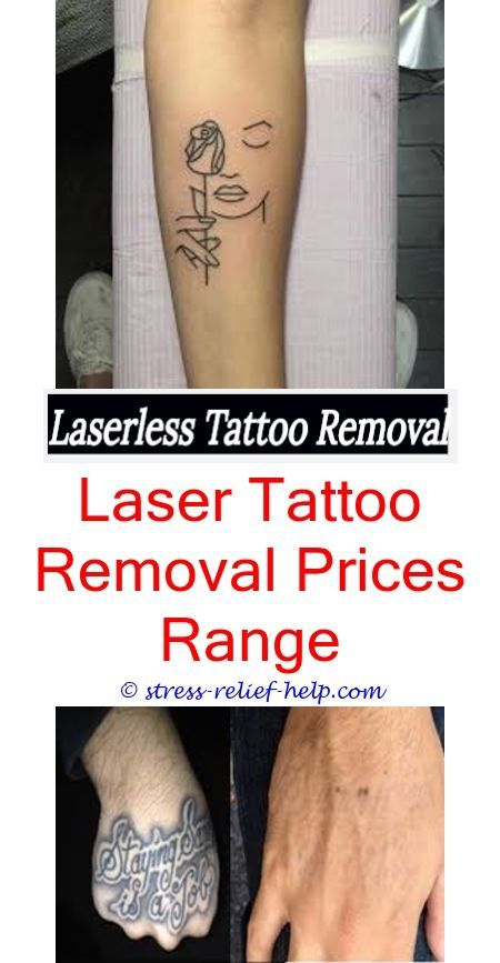 Tattoo Removal Nj