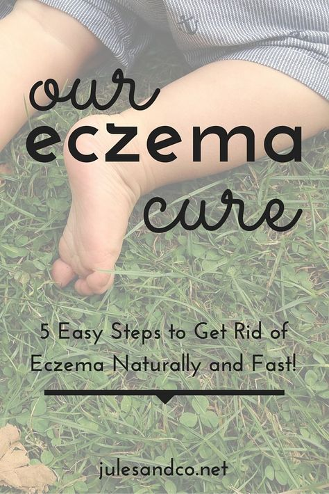 Our Eczema Cure: My 5 Step Plan to Get Rid of Eczema Naturally and Fast! | Itching for eczema relief? I've tried everything to cure my toddler's eczema. I finally found a plan that works! | julesandco.net