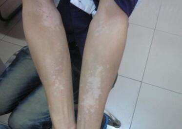 How To Identify The Early Symptoms Of Vitiligo Vitiligo Vitiligo Vitiligo Treatment Symptoms