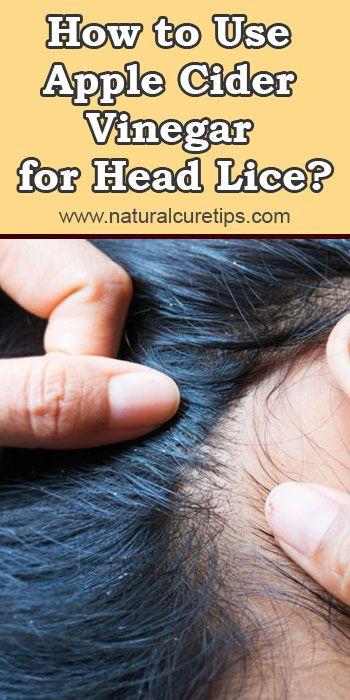 How To Use Apple Cider Vinegar For Head Lice Head Louse Apple Cider Vinegar For Hair Apple Cider Vinegar Lice