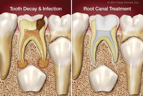 If baby teeth fall out eventually anyway, why would a dentist ever recommend root canal treatment for children? Plenty of good reasons, which you can read about here.