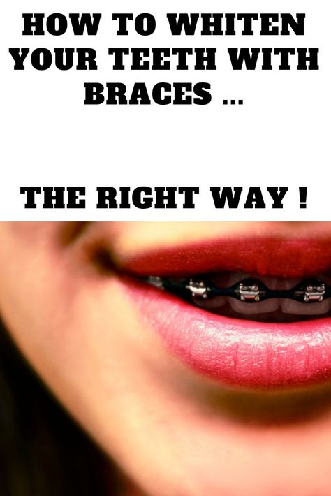 Ca 30 Resultater Can You Whiten Your Teeth With Braces