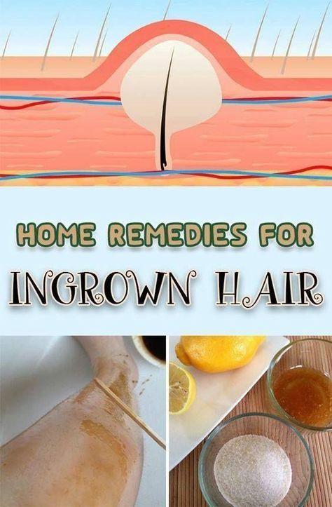 Area bikini hair in ingrown