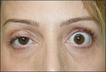 botulinum toxin szemek