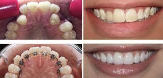 Pin On Dental Crowns Houston Tx