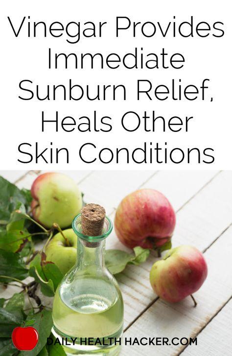 Vinegar provides immediate sunburn relief, heals other skin conditions