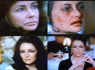 Did Elizabeth Taylor Get Plastic Surgery Facelift Botox Injection Before And Af Af Botox Elizabeth Facelift Cosmetic Surgery Botox Botox Injections