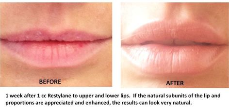 natural looking lip injections before and after - Google Search #LipFillersStyles