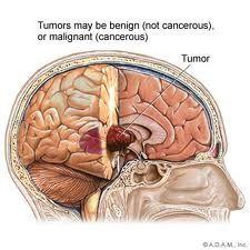 brain-tumor.jpg 432×460 pixels   brain tumor   Pinterest   Brain