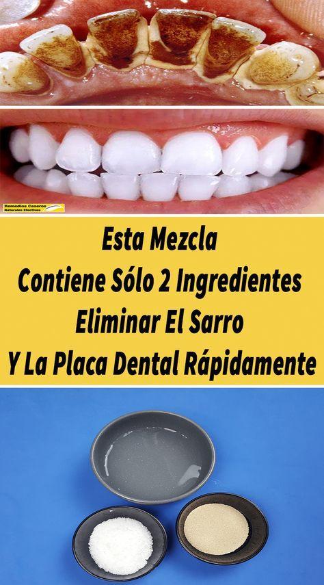 Aplicar Esta Mezcla En Los Dientes Puede Ayudar A Eliminar La Placa Dental Y El Sarro De Lo En 2020 Eliminar Sarro Dientes Placas Dentales Blanqueamiento Dental Casero