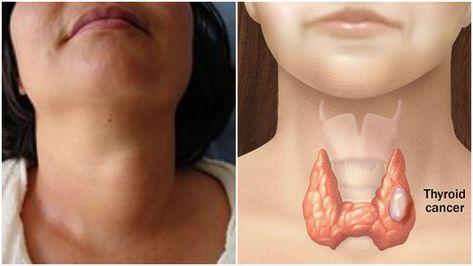 diabetes cáncer de tiroides