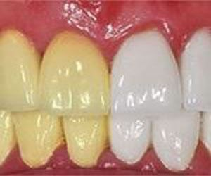 1 Simple Trick Erases Teeth Stains Over Night