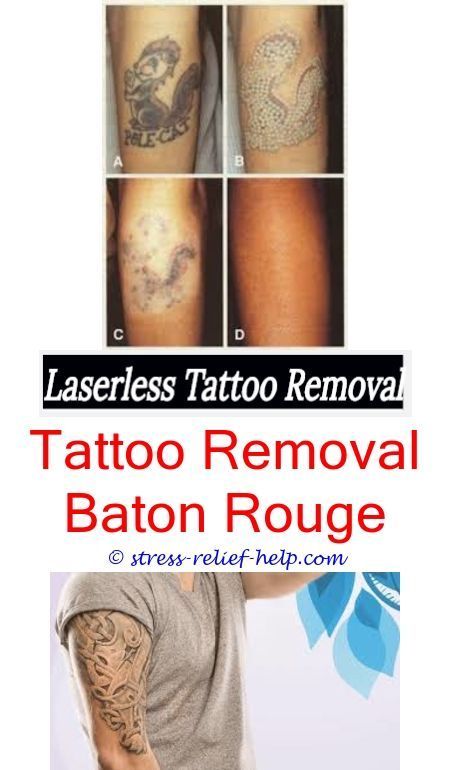Tattoo Removal Baton Rouge : tattoo, removal, baton, rouge, Laser, Tattoo
