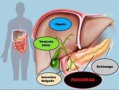 es la diabetes tipo 1 relacionada con el cáncer de páncreas