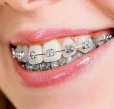 Pin On Ivanov Orthodontics