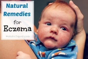 Natural Remedies for Eczema - Holistic Squid