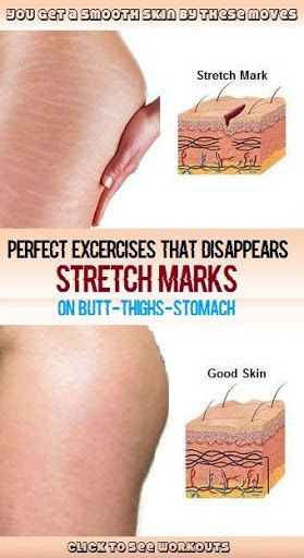 d51be976cf76412a227821d7946569dc - How To Get Rid Of Stretch Marks On Thighs Teenager